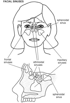 How Is Sinusitis Treated Functional Endoscopic Sinus Surgery